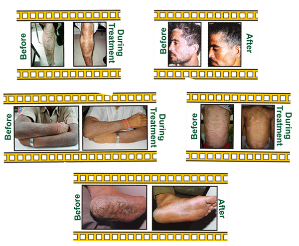 Homeopathy Treatment For Skin Diseases Like Psoriasis Dandruff At Baksons Homeopathy in New Delhi 1
