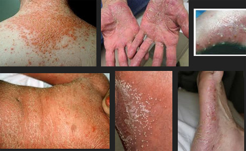 Good Skin Care by Psoriasis and Skin Clinic in Applecross, reviews by real people 2